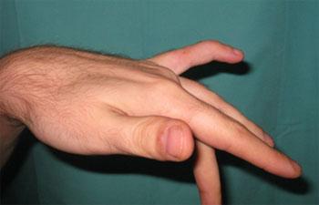 hovent ledd lillefinger